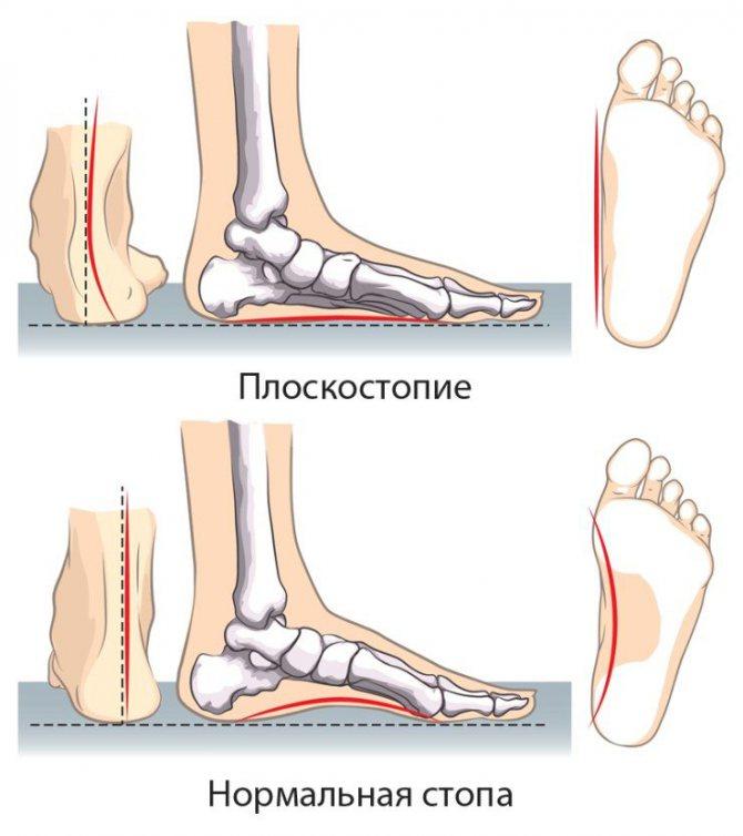 По какой причине болят ступни ног